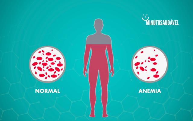 Anemia perdida de peso sintomas