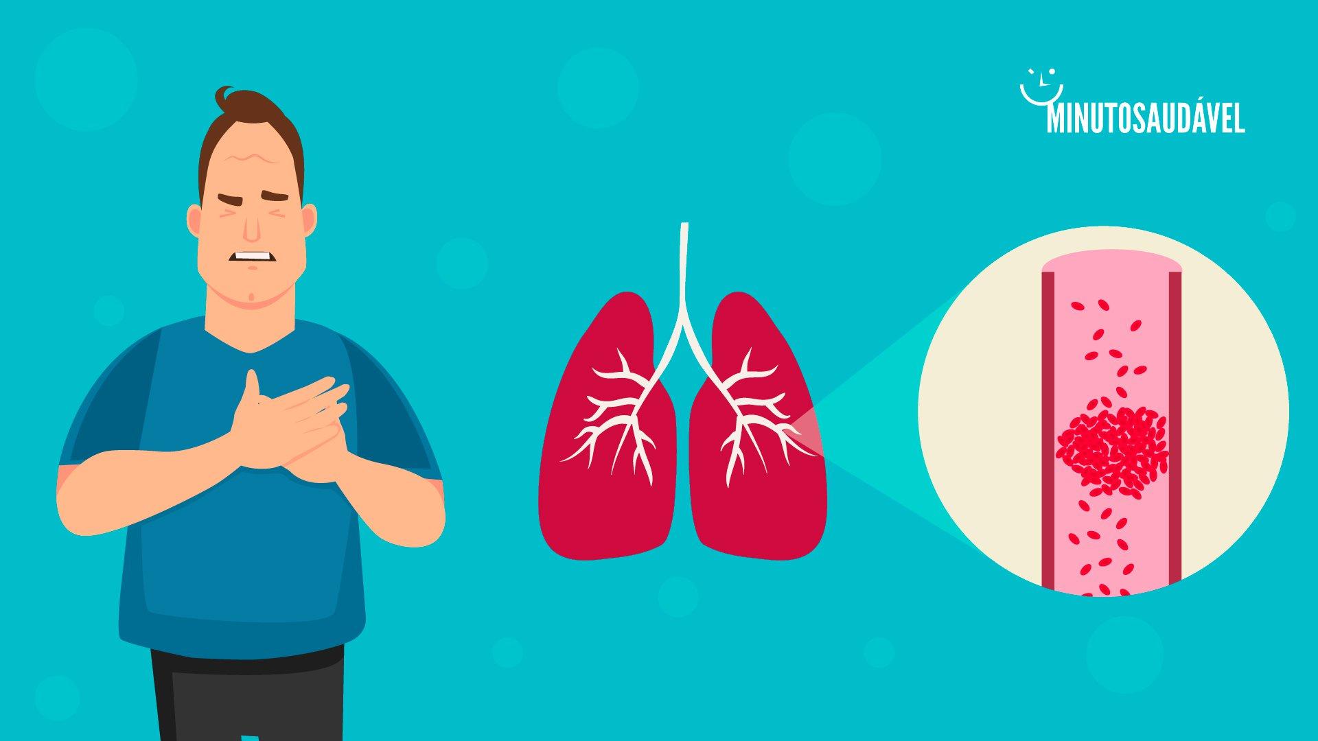 Pulmões nos causa dos coágulos é a qual sanguíneos