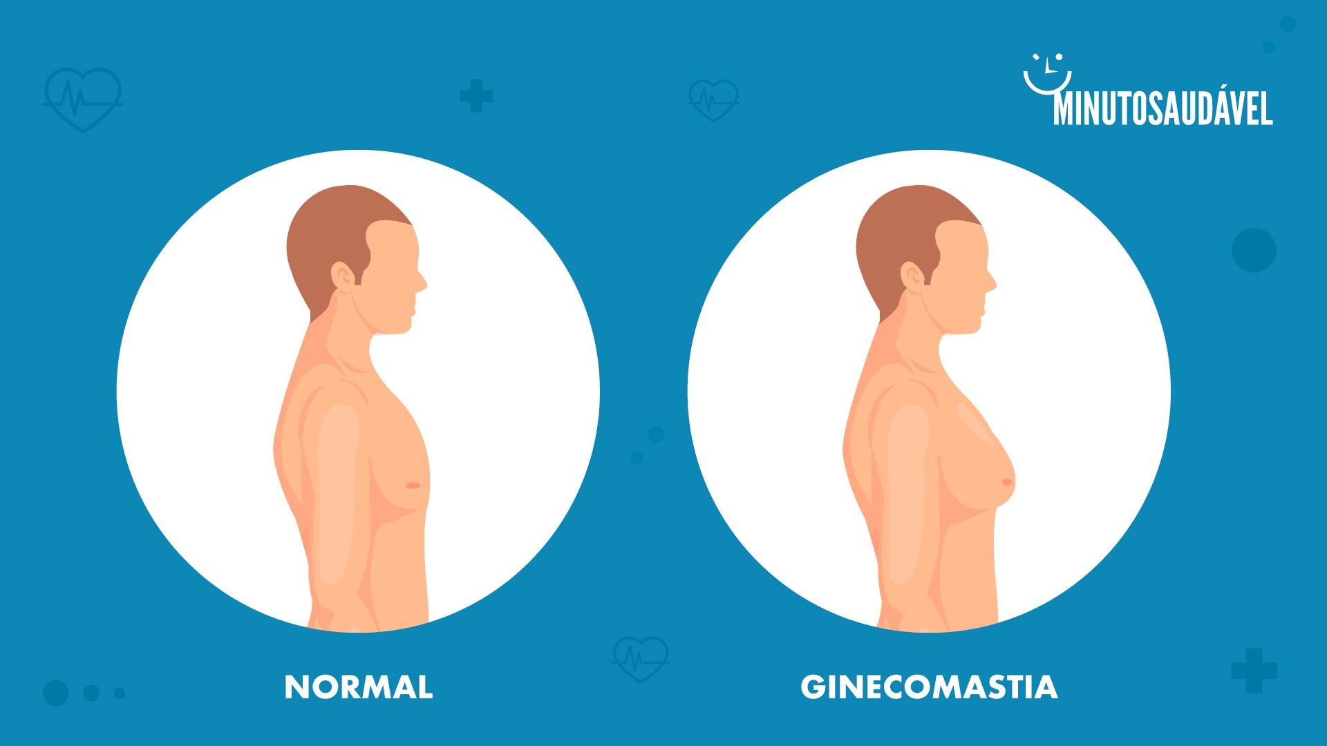 cura la próstata y la ginecomastia