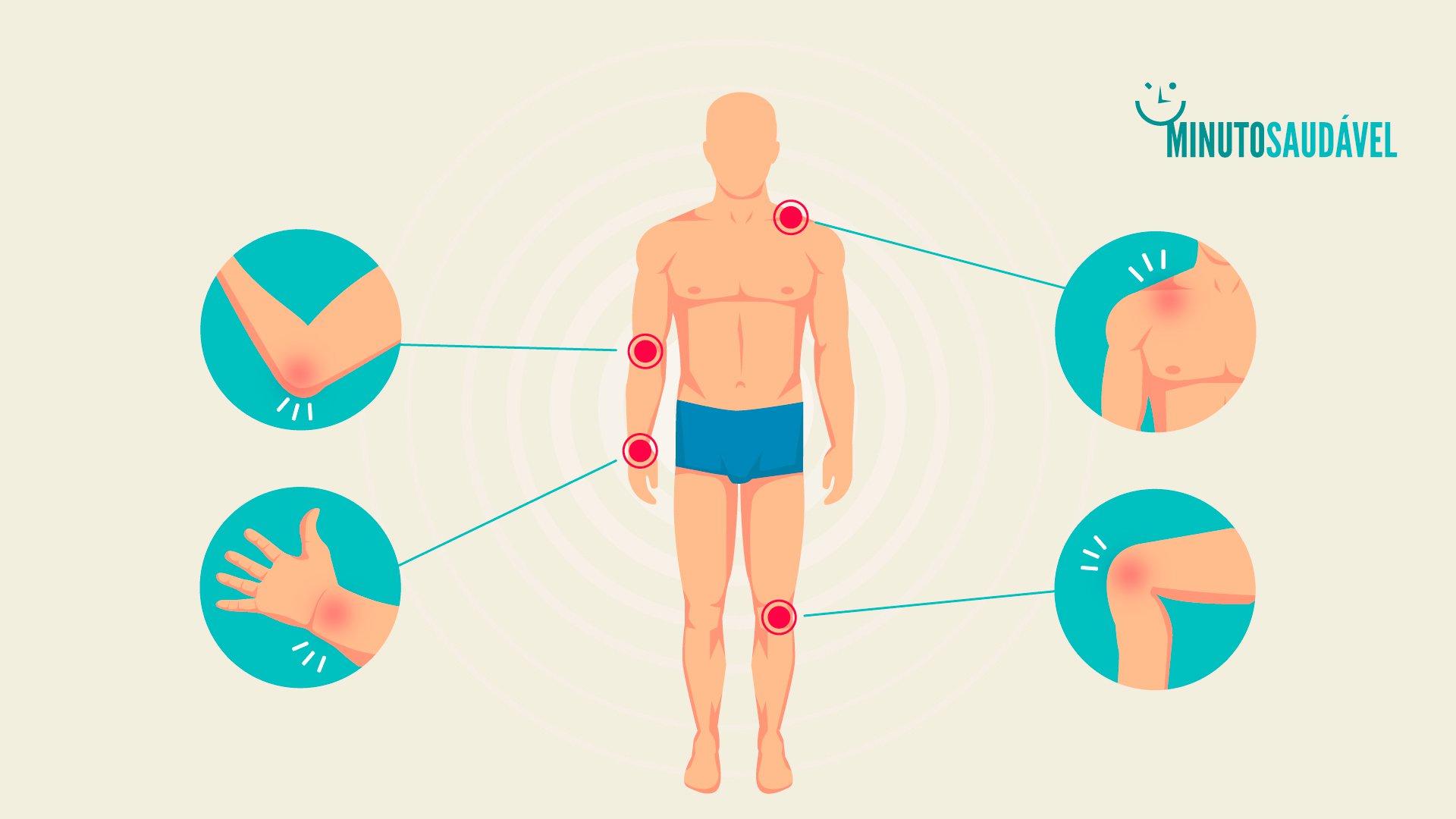 tratamento da dor muscular prednisona