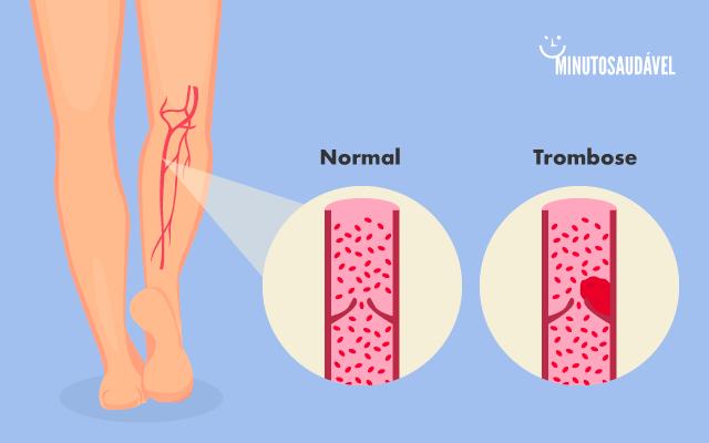 Cerebral definição de tromboembolismo