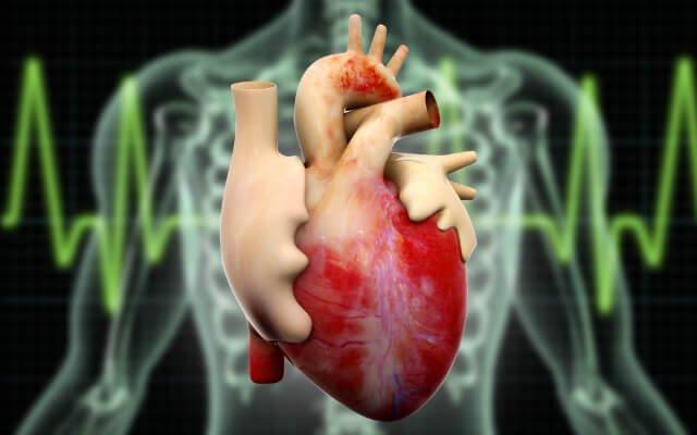 Infarto é diferente de parada cardíaca