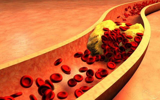 que significa colesterol ldl alto