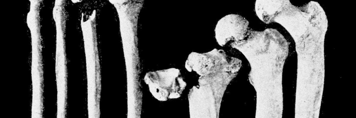 5e933bd3eb7 O que é Osteomielite, diagnóstico, tratamento, tem cura? Pode matar ...