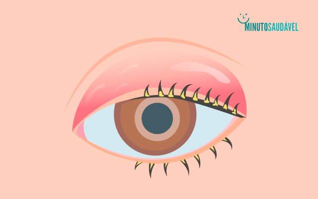 Sob inchaço infecção ocular ocular tratamento