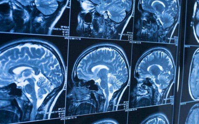 Qué causa el líquido en el cerebro en adultos