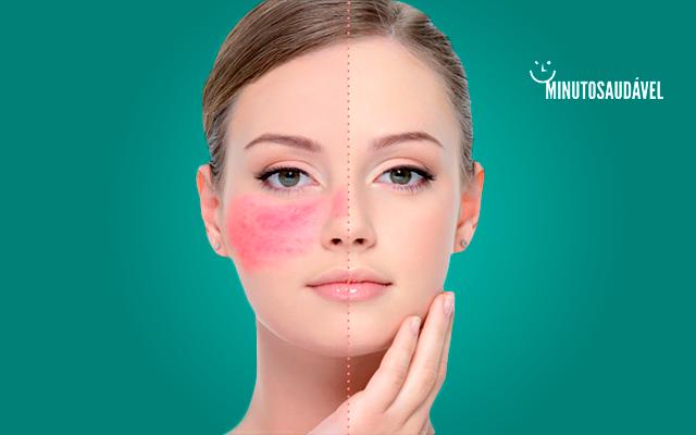 No rosto inchadas como reduzir manchas