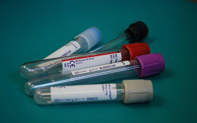 exame-de-hemoglobina-glicada-minuto-saudavel