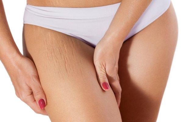 Mulher com as mãos na pernas mostrando as estrias.