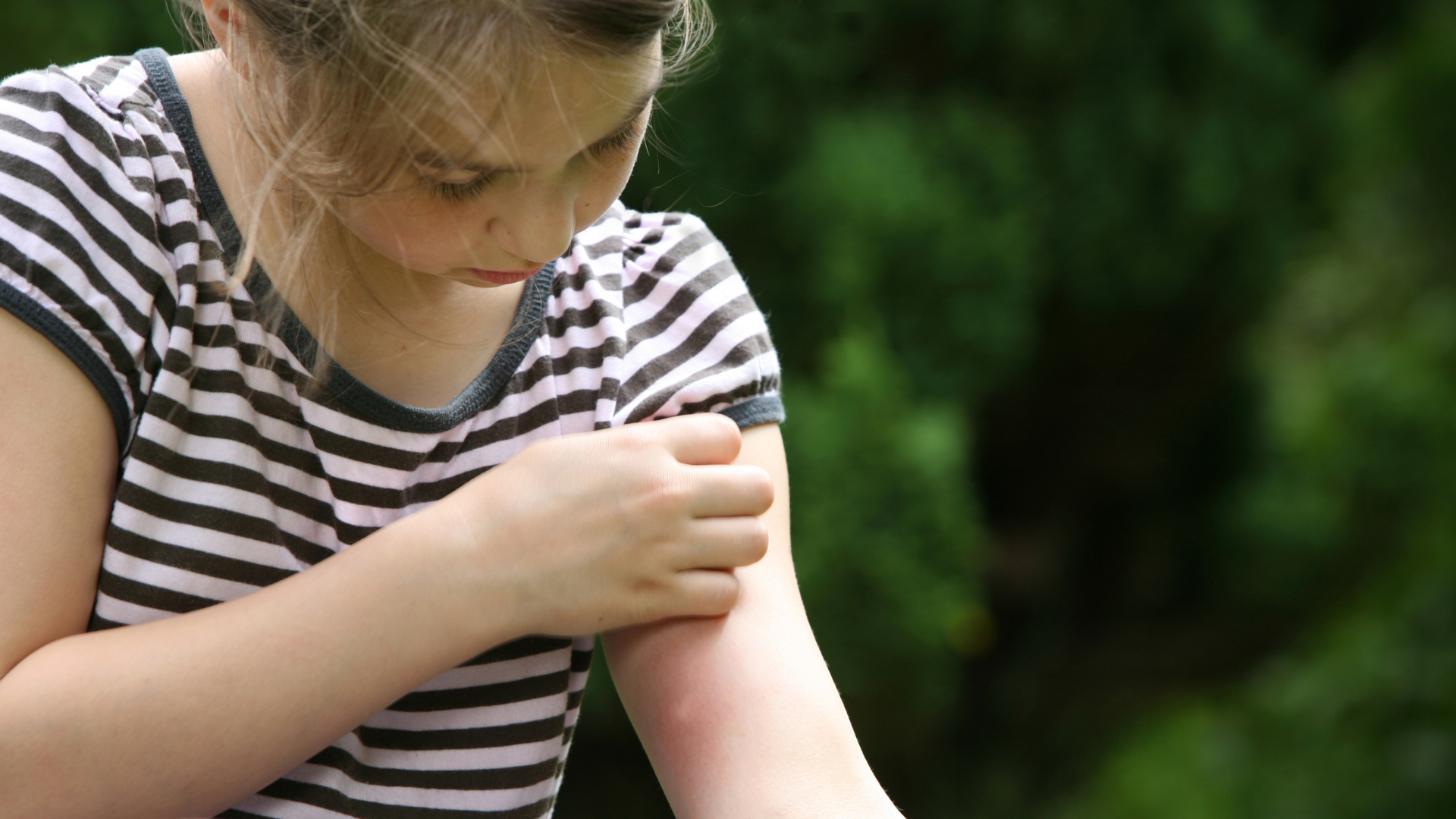 Dermatite De Contato O Que é Pomada Tratamento Tem Cura