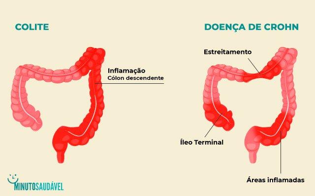 Doença de Crohn  o que é 3b1bc9a7d6543