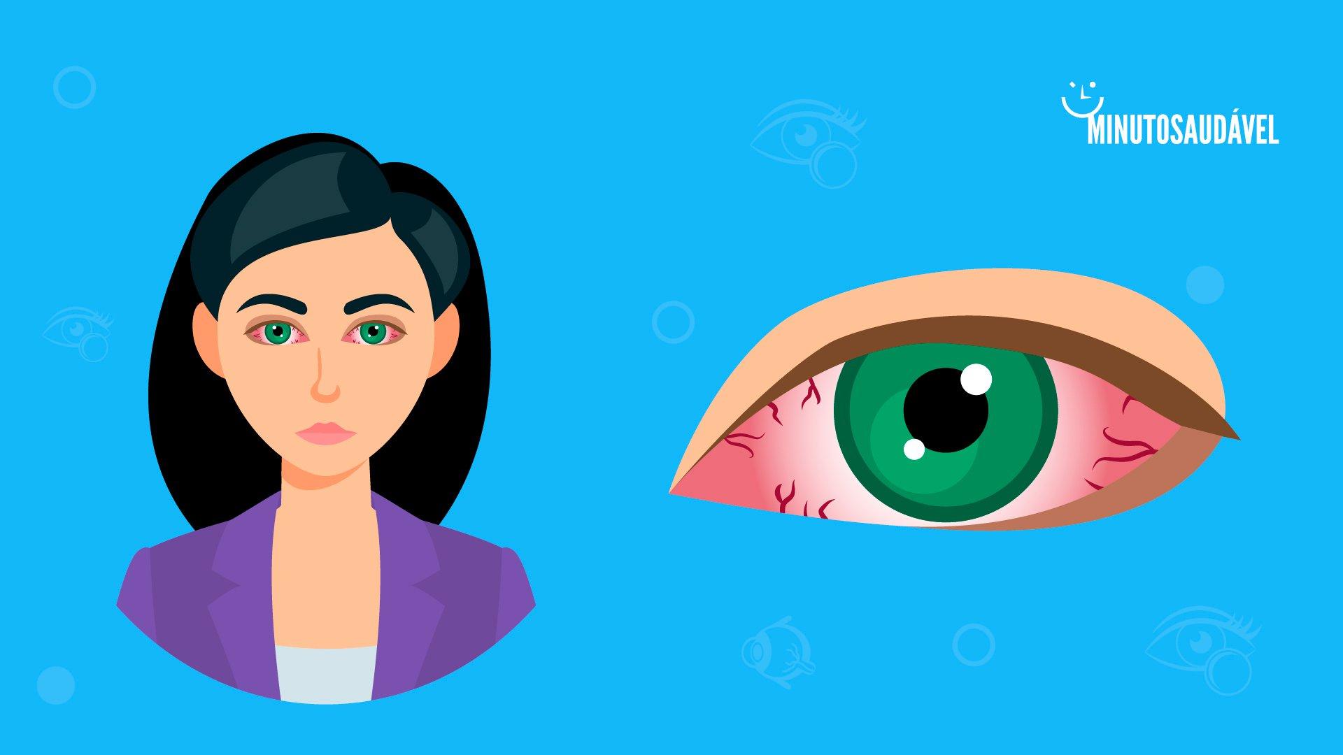 c687e0279 Síndrome do olho seco: sintomas, causas, tratamento e colírios   MS
