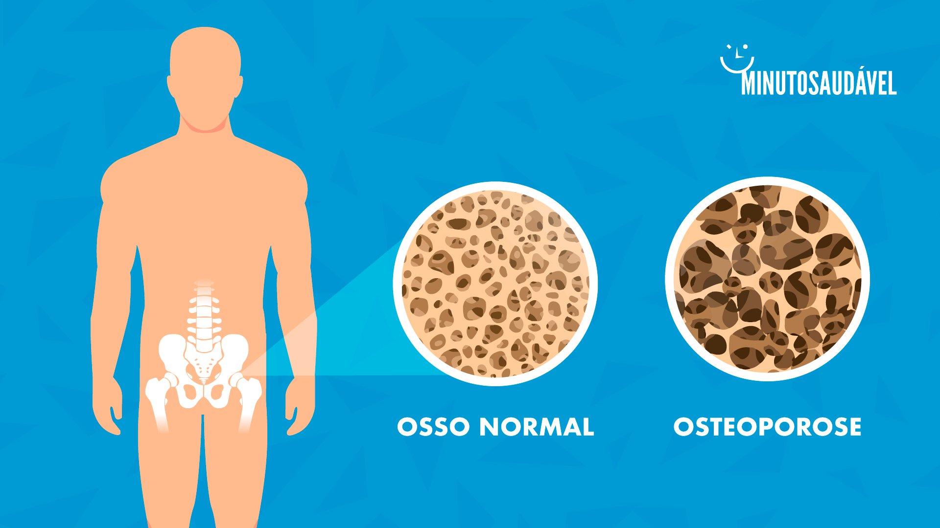 é osteoporose causada por deficiência de vitamina d