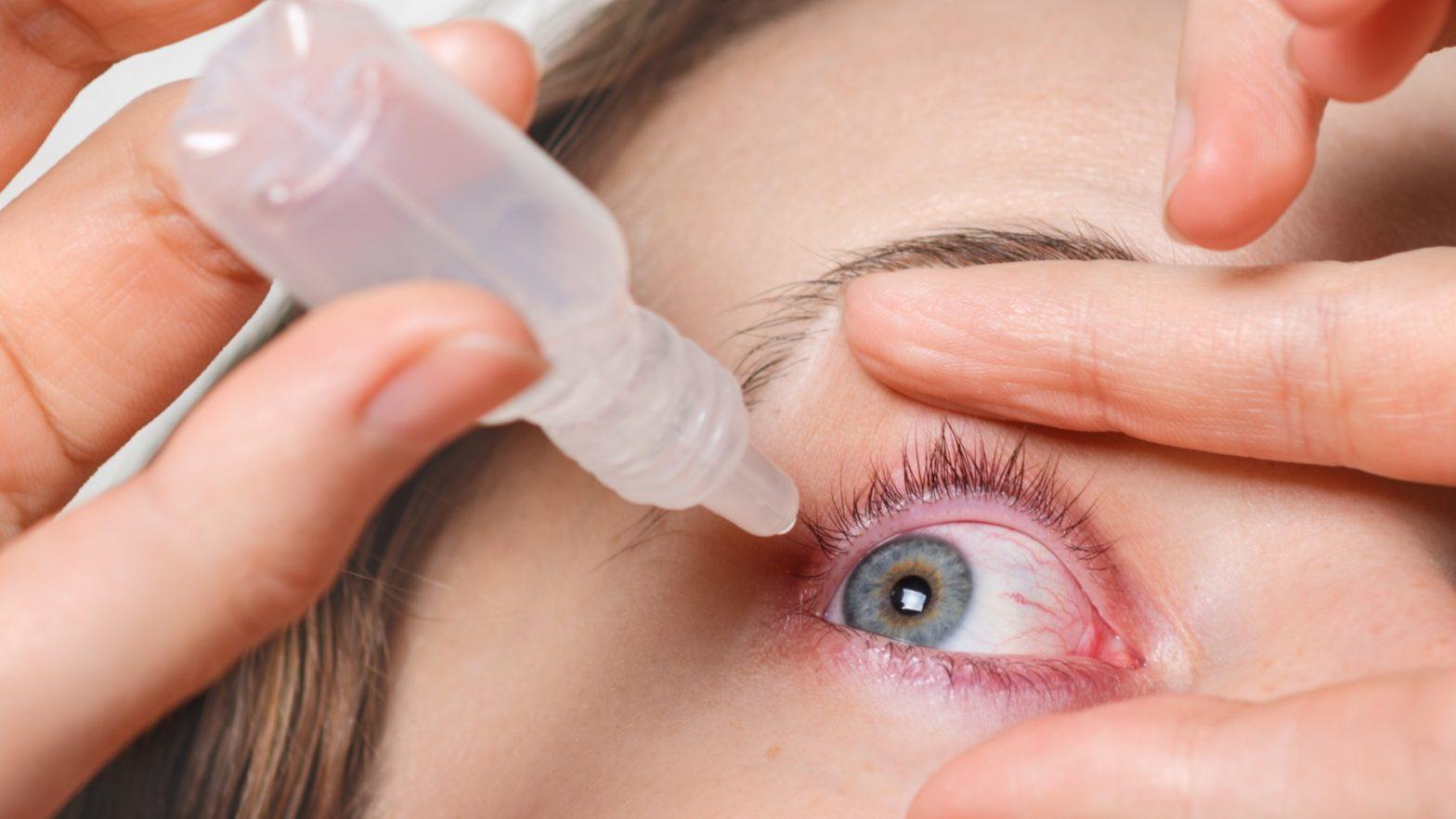 Mulher aplicando colirio para curar derrame ocular.