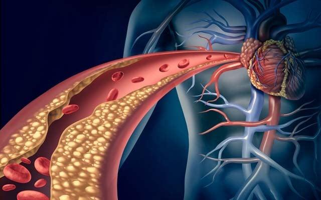 Imagem ilustrativa de moléculas de gordura na circulação sanguínea que leva ao coração.