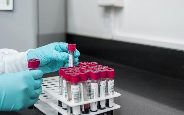 Profissional separando diversos tubos com amostras de sangue para realizar o exame de lipidograma.