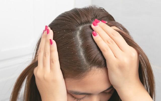 Mulher com cabelo cheio de particulas de caspa.