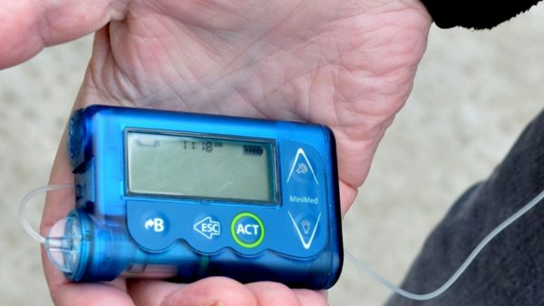 Bomba de insulina.