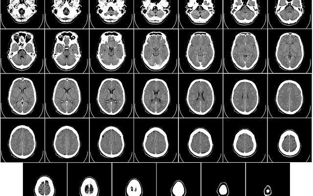 Diversas imagens do crânio produzidas pela tomografia computadorizada.