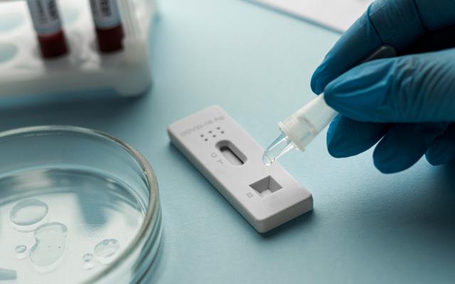 exame anticorpos neutralizantes