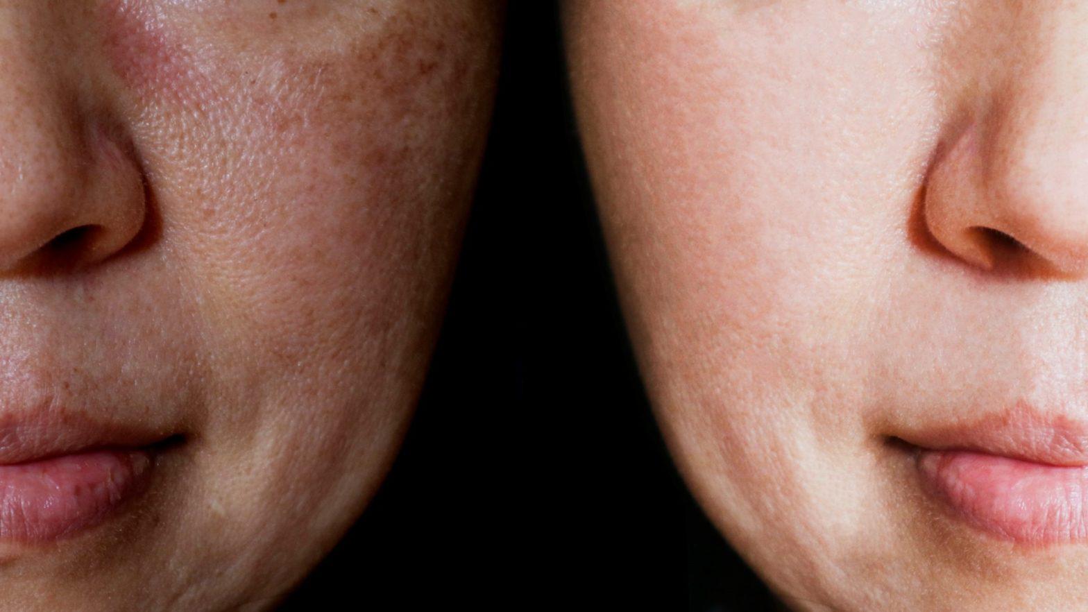 Rosto de mulher com manchas antes de utilizar o ácido glicólico e depois com a pele rejuvenescida.