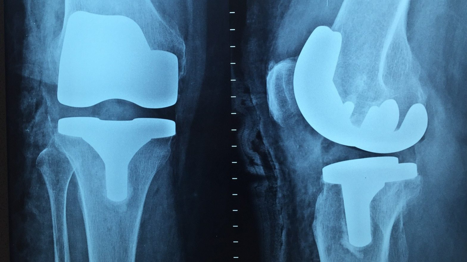 Radiografia de osso quebrado.