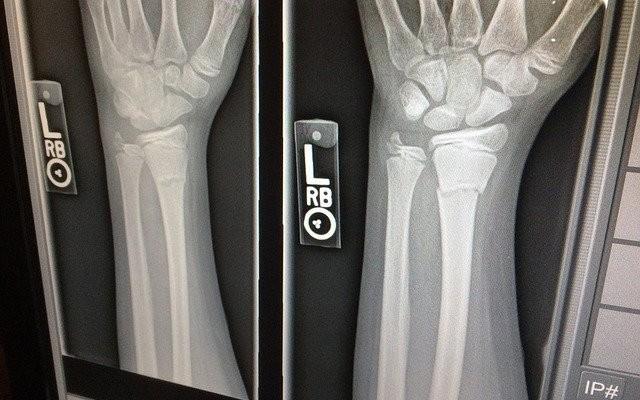 Imagem de raio x do pulso deslocado.