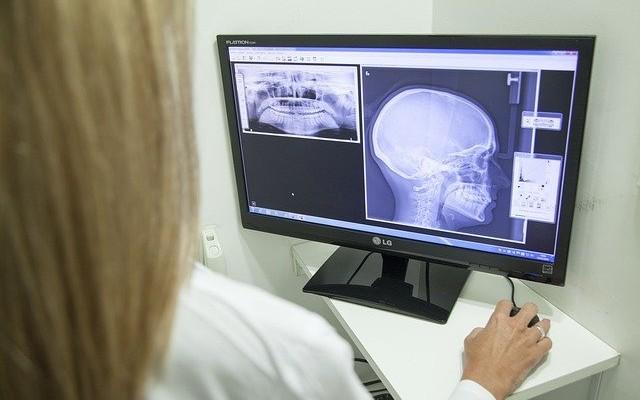 Mulher observando radiografia do paciente no computador.