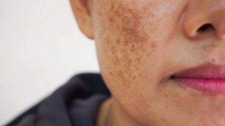 Rosto de mulher com manchas devido ao melasma.