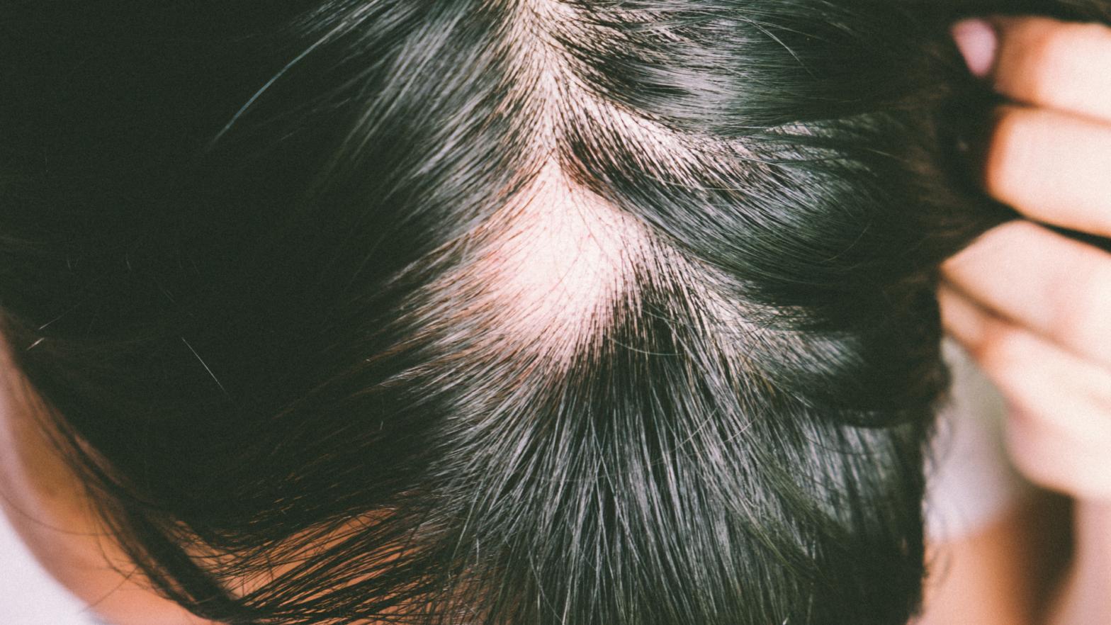 Covid e queda de cabelo