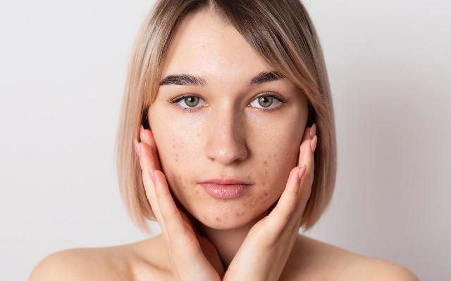 Mulher com acne devido alimentação com muito açucar.