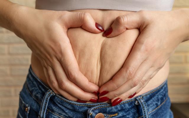 Lipocavitação é indicada para tratar gordura localizada e celulite